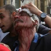 gal.Egyptian.injured.jpg_-1_-1